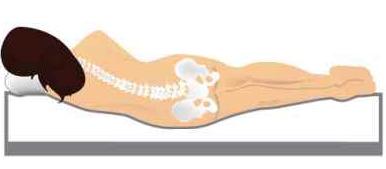 Verlauf der Wirbelsäule bei zu weicher Matratze